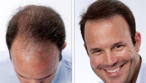 Silk Hair & Scalp Clinic